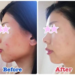 【受講生の変化】3ヶ月で肌荒れがキレイに改善しています♡