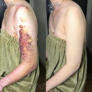 脂肪吸引後の内出血をカバーメイク