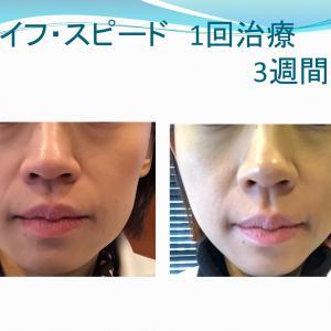 今やるべき美容治療とは?