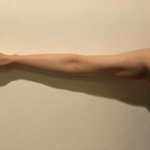 ウルトラセルQプラス リニアNEWカートリッジで二の腕痩せ