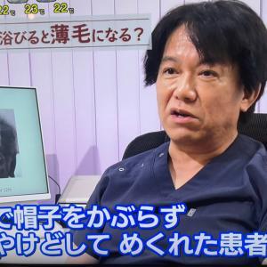 NHKあさイチ「人には言えない!?女性の薄毛 経験者から学ぶ克服のツボ」