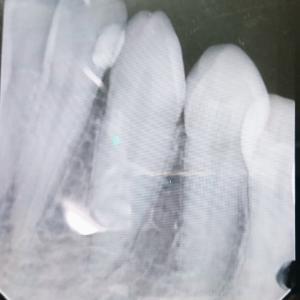 いきなり歯の神経抜かれ