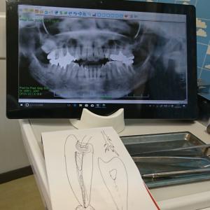 歯医者に匙投げられる