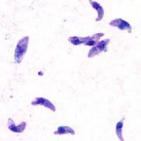 トキソプラズマ症