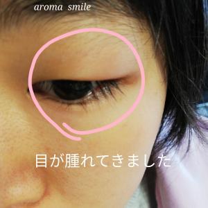 ちょっとした不調の時の家庭での手あて ものもらいなどの目の炎症