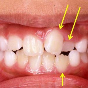 乳歯と永久歯の混合歯列における矯正治療