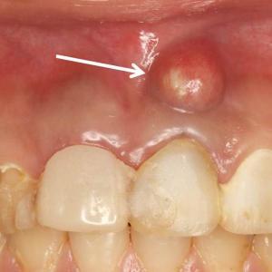 根尖病巣に伴う歯茎の腫れ~治療は中断してはいけない~