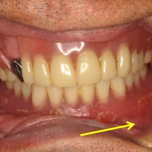 悪い入れ歯は、単に噛めないだけではない~良い入れ歯は、人間を復興する~