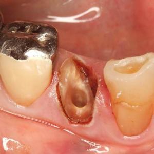 水平性歯根破折は、エクストルージョンで抜歯を回避