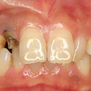 前歯のインプラント治療~インプラント上部構造もメタルフリーが審美的~