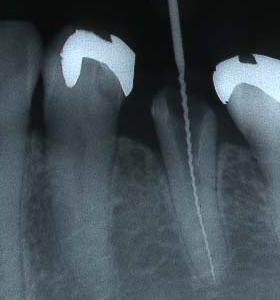 根管治療の成功のカギは、根管形成にかかっている