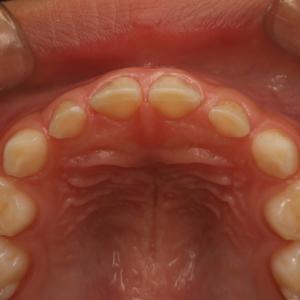 歯並びが悪くならないためには、乳歯列期の食習慣が重要