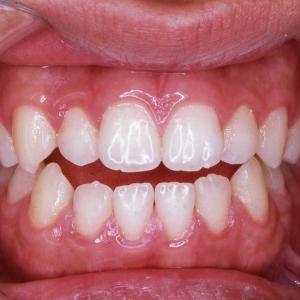 開咬(オープンバイト)は、奥歯がダメになりやすく、顎関節に負担がかかりやすい