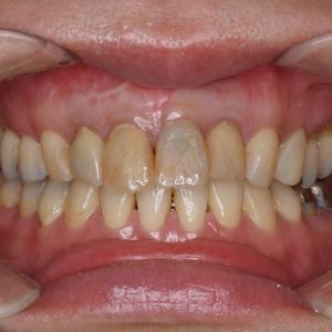 歯髄壊死による根尖病巣~大きな虫歯は歯髄壊死を起こす可能性が高い!~