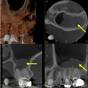歯が原因の蓄膿症(副鼻腔炎)~歯性上顎洞炎は歯を正しく治療すれば治る!~