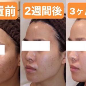 ビタミンの糸 ニキビ改善、美肌効果の実際。