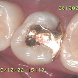ゴールドインレーが入っている歯が甘いものでしみる?