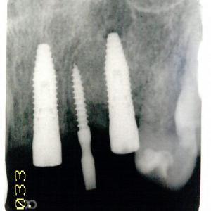最近、犬歯の歯根破折が多い傾向にあります