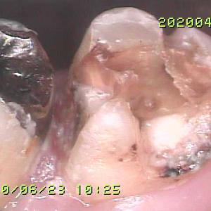 再治療したくない歯のでかい銀歯がはずれてきた