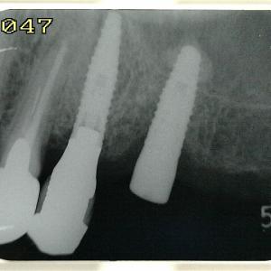 第一大臼歯までは残したいものですが
