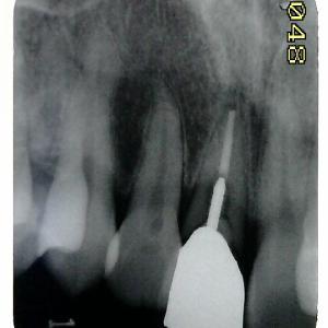 差し歯が折れてきたのですが・・・