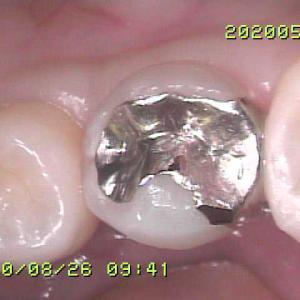 この銀歯の治療、どのように思いますか?