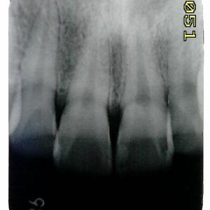 打撲による歯髄壊死から根尖性歯周炎