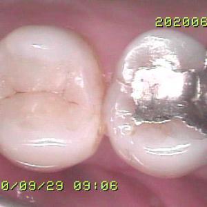 ダイレクトボンディングも虫歯が歯肉縁下まで行くと難易度あがりますね PART1