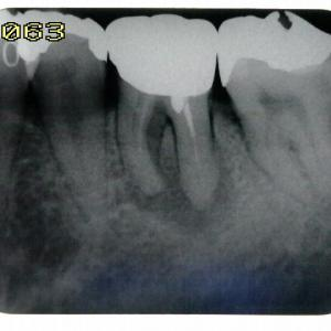 歯内療法、経過は良さそうです