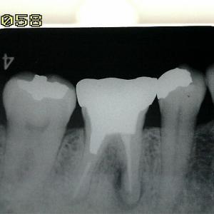 歯内療法、あきらめが肝心の時もある