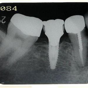 病気は治せても歯根破折はどうにもならない