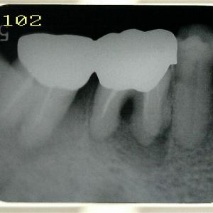 歯周病の方にインプラント埋入ってあまりしないのですが・・