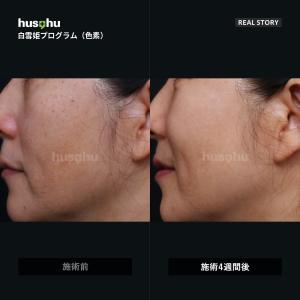 フーズフー皮膚科/しみ治療/そばかす治療