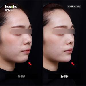 フーズフー皮膚科/顎フィラー/フィラー注入/ヒアルロン酸注入