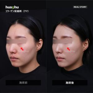 フーズフー皮膚科/コラーゲン促進剤/クマ取り/クマ改善