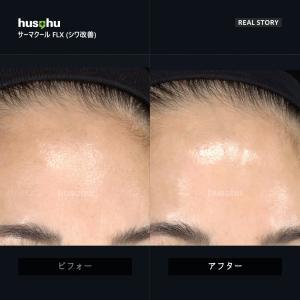 フーズフー皮膚科/サーマクール/リフト/リフティング/リアルストリ