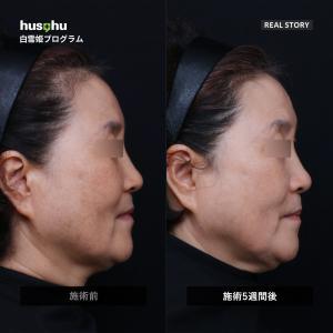 フーズフー皮膚科/シミ・ソバカス・肝斑治療/一度だけの効果