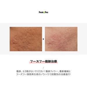 フーズフー皮膚科/クレータ治療/ニキビ跡/ニキビ治療