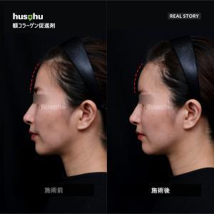 フーズフー皮膚科・/プレミアムコラーゲン促進剤/額フィラー/フィラー効果