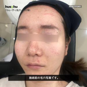 フーズフー皮膚科/毛穴治療/黒ずみ/毛穴引き締め