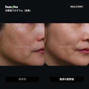 フーズフー皮膚科/美白治療/色素治療/シミ治療/ソバカス治療