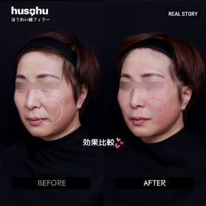フーズフー皮膚科/エランセ/ほうれい線改善