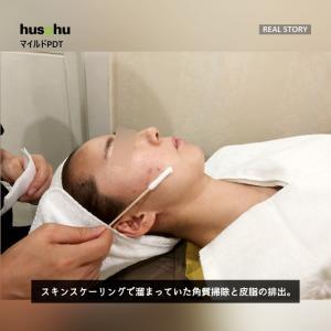 フーズフー皮膚科/ニキビ治療/ニキビケア/ニキビ治療方法