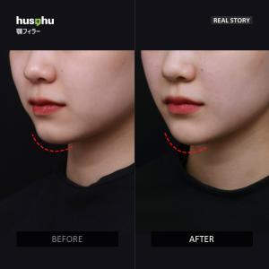 フーズフー皮膚科/顎ヒアルロン酸注入/顎ヒアルロン酸/韓国美容皮膚科