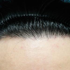 【動画あり】自毛植毛手術★8ヶ月後