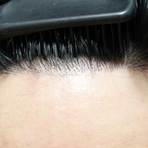 自毛植毛手術★7ヶ月後