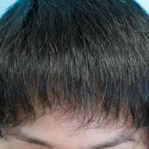 自毛植毛手術★9ヶ月後