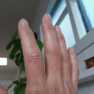 手の浮腫み