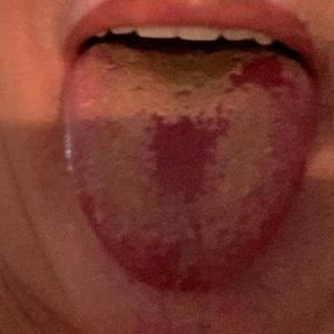 Covid 舌 (Covid Tongue) とは?