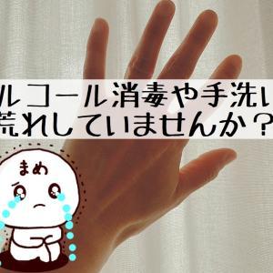 【消毒・手洗いは大事!でも、手荒れで困っていませんか?】